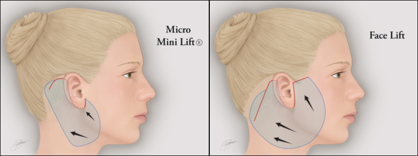 Experience The Cutting Edge Micro Mini Facelift Procedure By Dr Godin