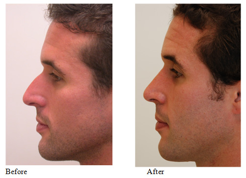 nose job rhinoplasty richmond